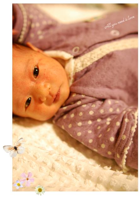 14 新生児にきび