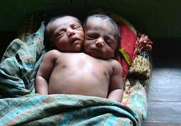 双頭の赤ちゃん