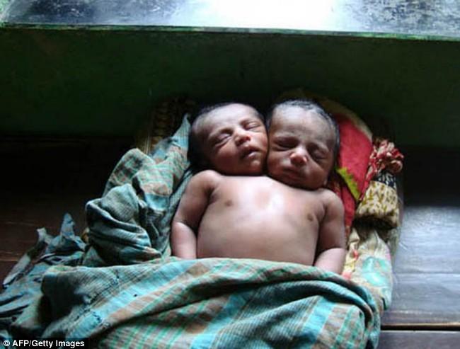 2つの頭を持つ赤ちゃん