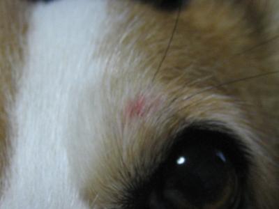 目の上の傷