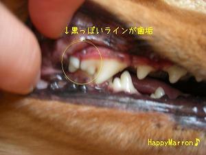 色素付き歯垢2