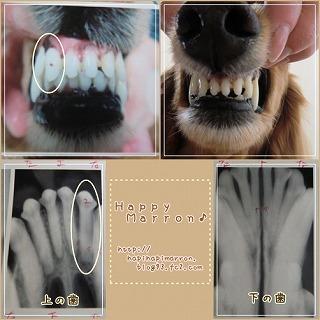 前歯治療1