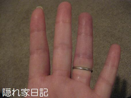 35週の指