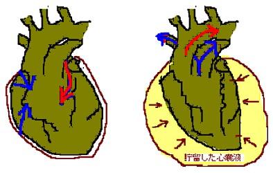 心たんぽ 絵3