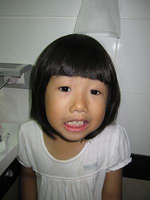 乳歯が抜ける直前