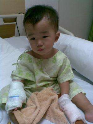 指の怪我3