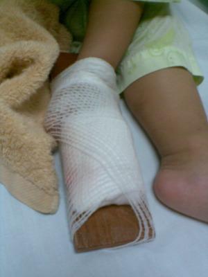 指の怪我4