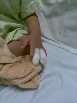指の怪我5