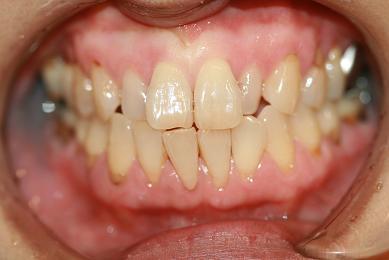 歯肉ピーリング2W