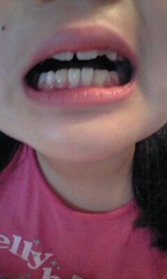 080624実織の歯