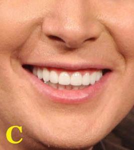 toothwhore1copy.jpg