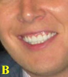 toothwhore1copyb.jpg