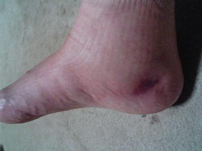 汚い脚でごめんよぅぅぅ