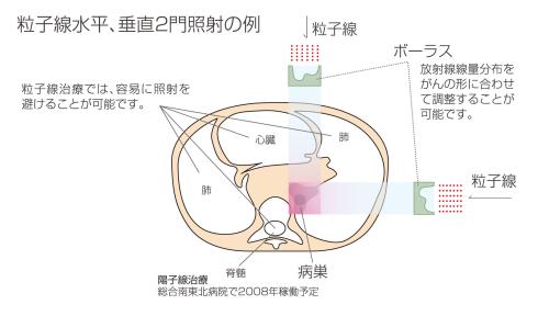 cancer proton