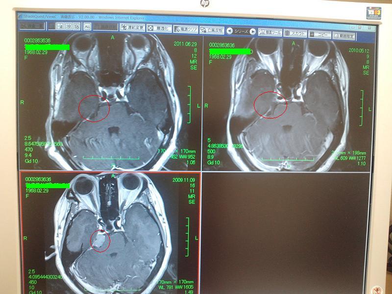 MRI_20110711153332.jpg