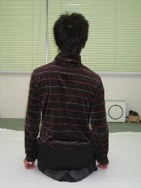 初回 施術前20090105